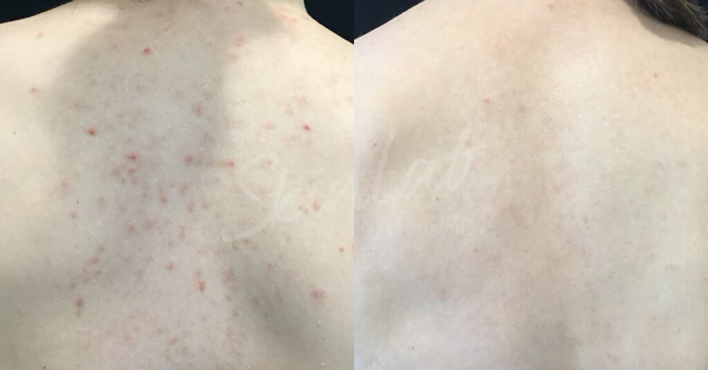 SkinLab Excel Laser Treatment