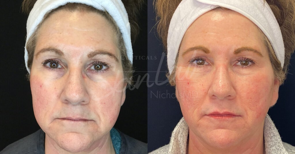 SkinLab Face Lift Treatment