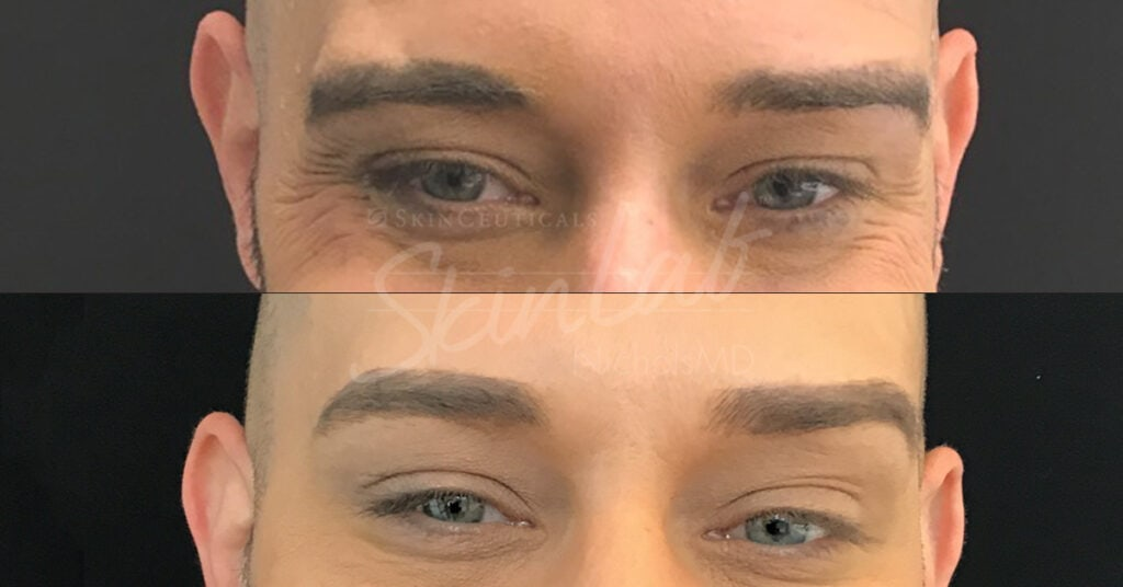 SkinLab Botox Brow Treatment