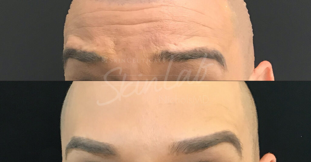 SkinLab Botox Brow Lift Treatment