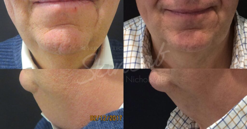 SkinLab Kybella Treatment