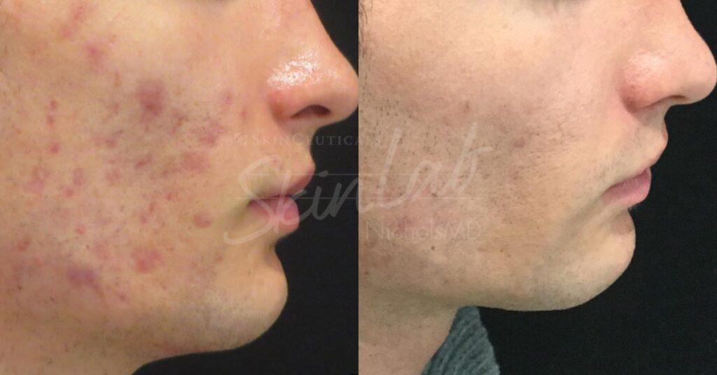 SkinLab Fraxel Treatment