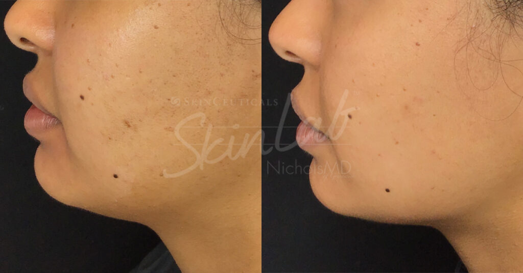 SkinLab Jaw Contour Treatment