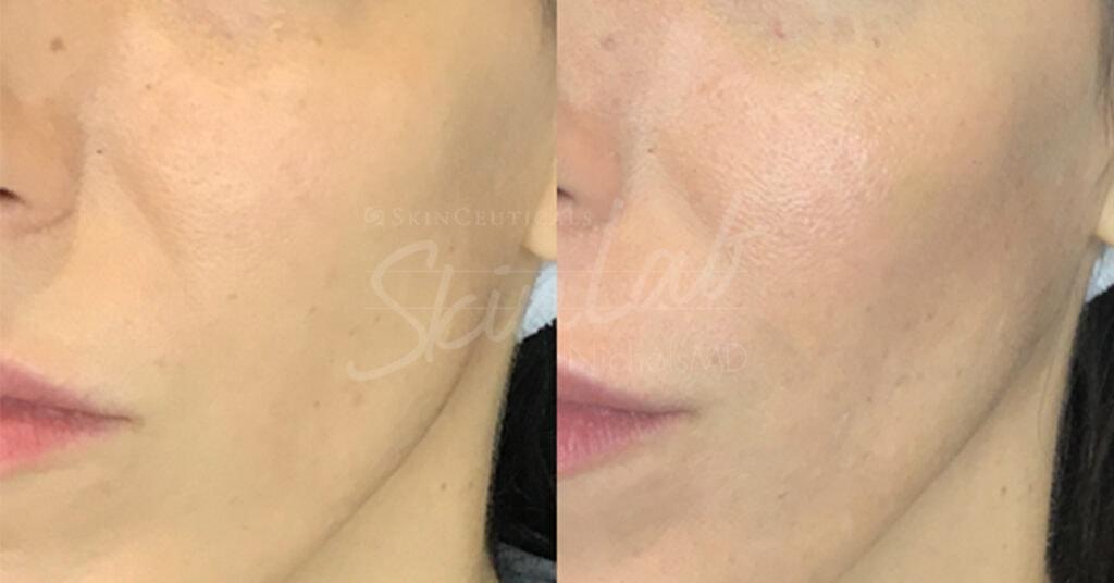 SkinLab Liquid Cheek Pop Treatment
