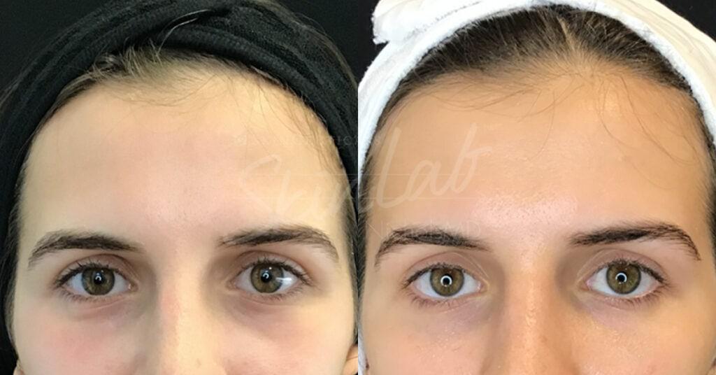 SkinLab Restylane Treatment
