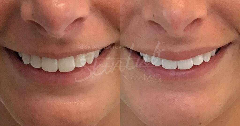 SkinLab Lip Fill Treatment