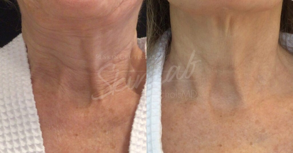 SkinLab Neck Laxity Treatment