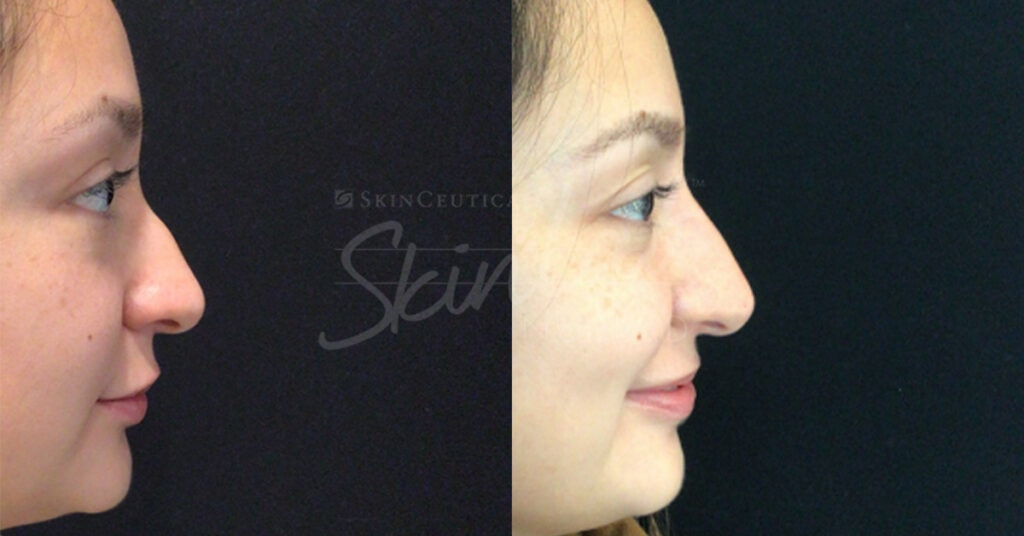SkinLab Non-Surgical Nose Correction Treatment