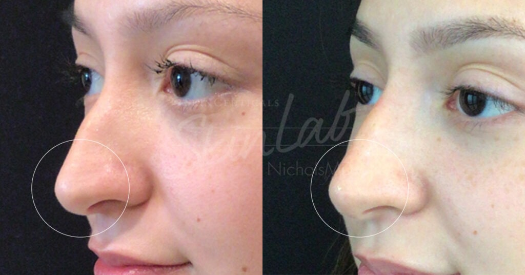 SkinLab Nose Correction Treatment