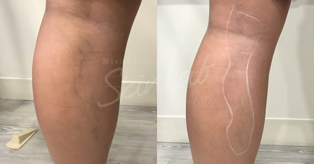 SkinLab Sclerotherapy Treatment