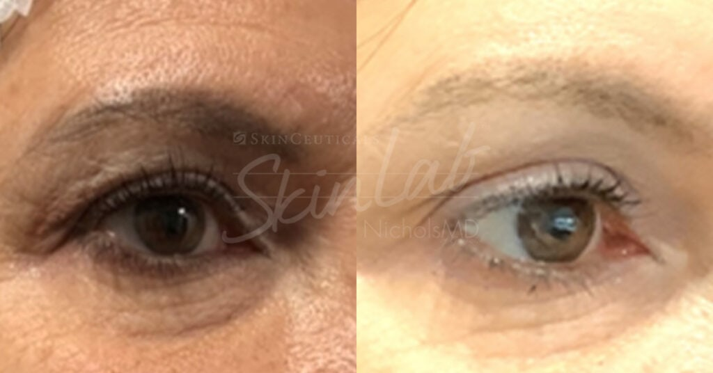 SkinLab Brow Lift Treatment