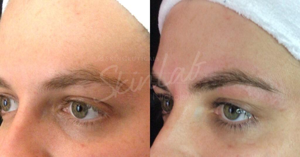 SkinLab Lash Tint Treatment