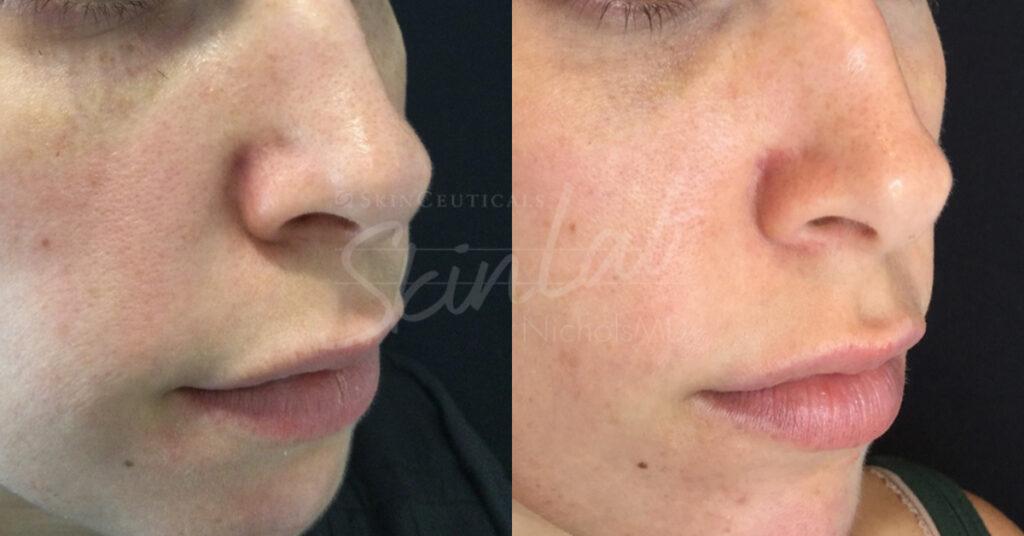 SkinLab Vascular Laser Treatment