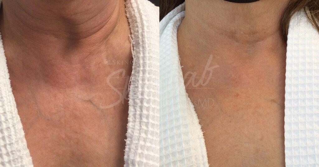 SkinLab Microtox Treatment