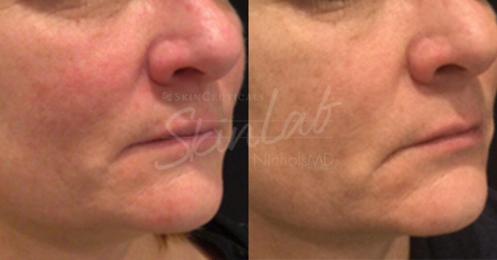 SkinLab Redness-Minimizing Laser Treatment