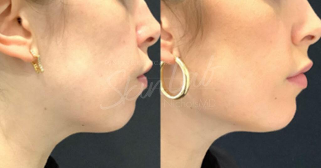 SkinLab Liquid Jawline Treatment