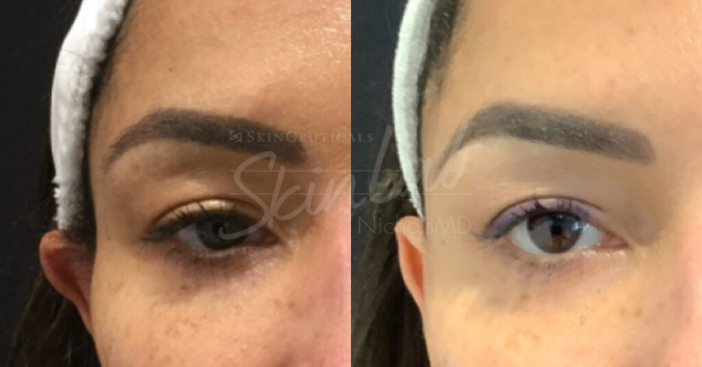 SkinLab Temple Filler Treatment