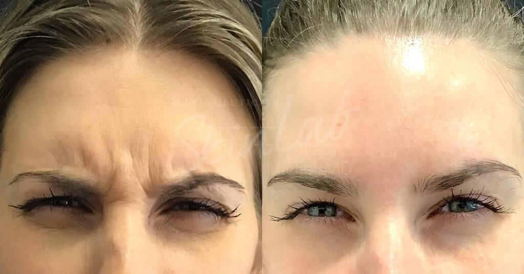 SkinLab Botox Treatment