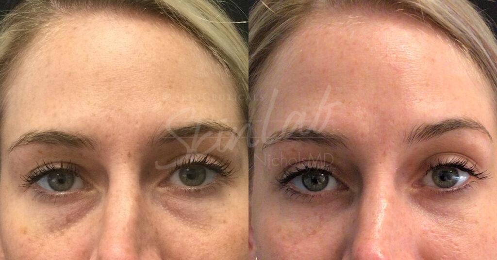 SkinLab Undereye Filler Treatment