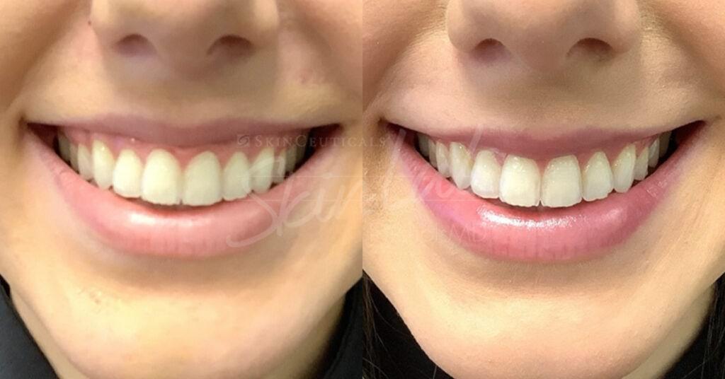SkinLab Gummy Smile Treatment