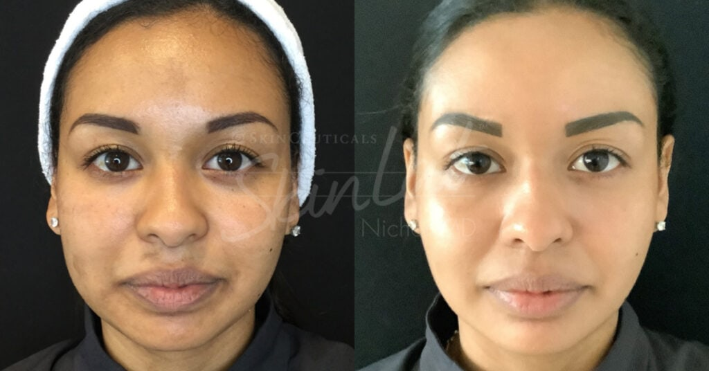 SkinLab Clear + Brilliant Treatment