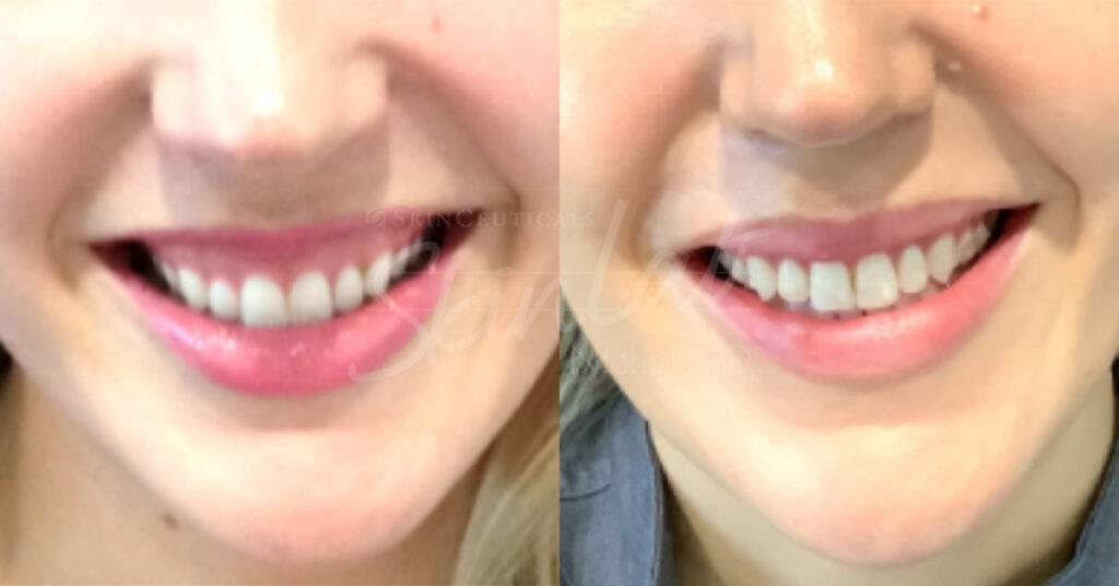 SkinLab Lip Flip Treatment