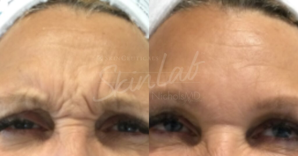 SkinLab Botox® Upper Face Treatment