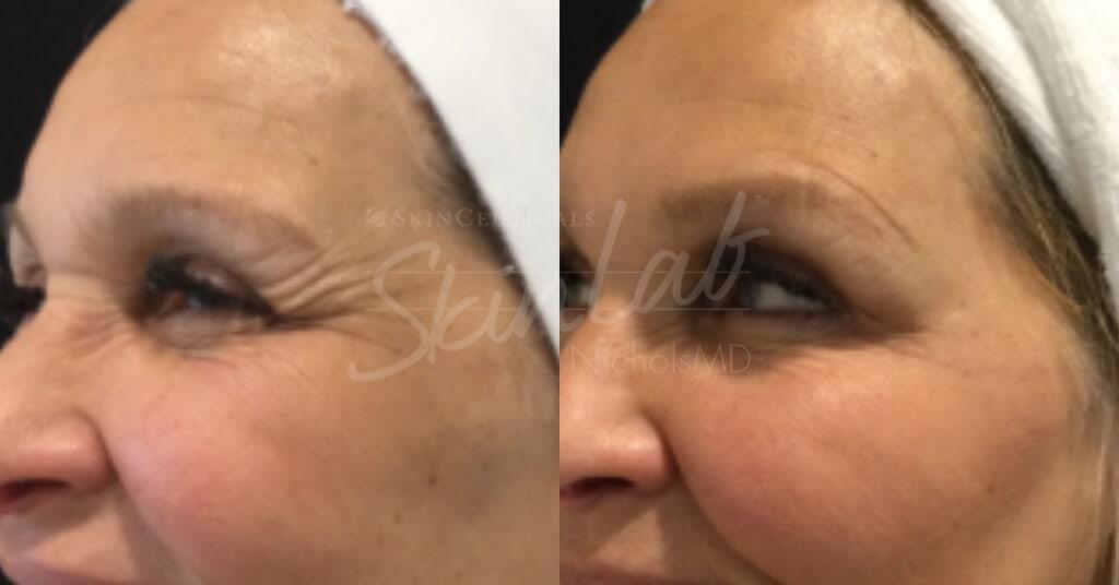 SkinLab Botox + Cheek Fillers treatment