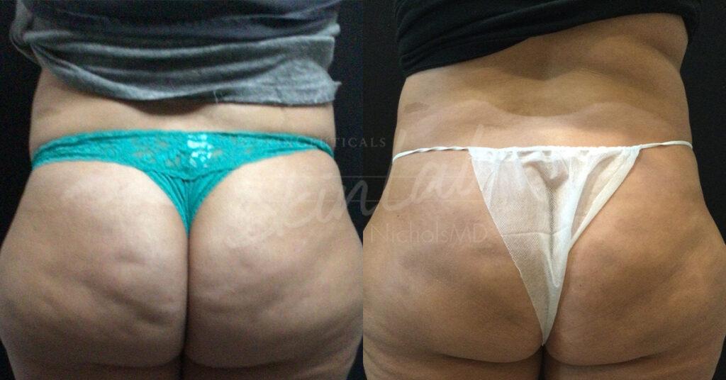 SkinLab Qwo Anti Cellulite Treatment