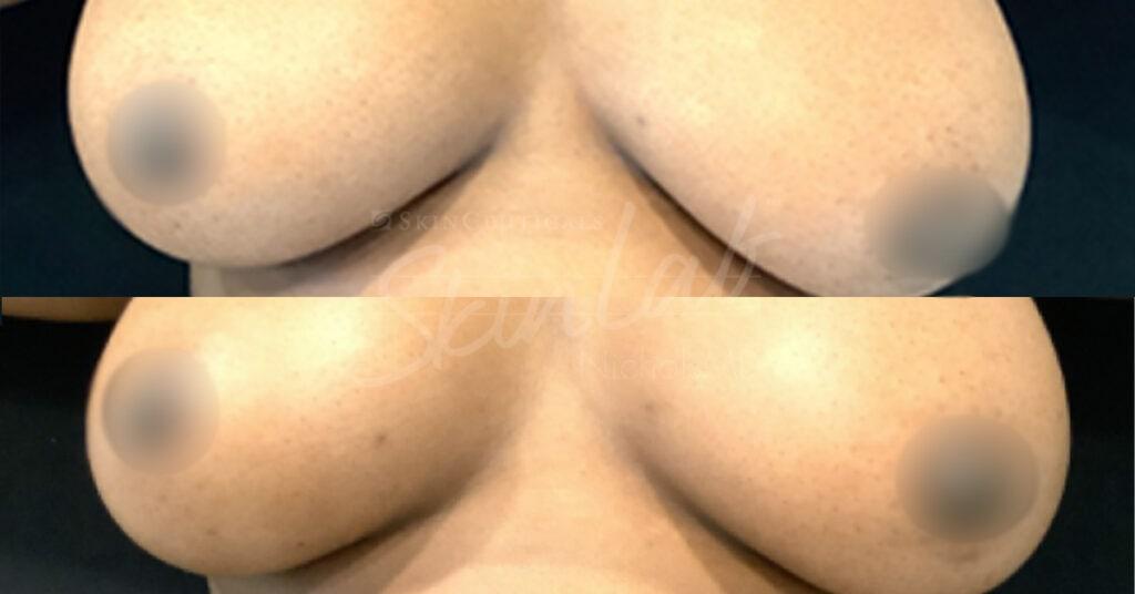 SkinLab PRP Treatment