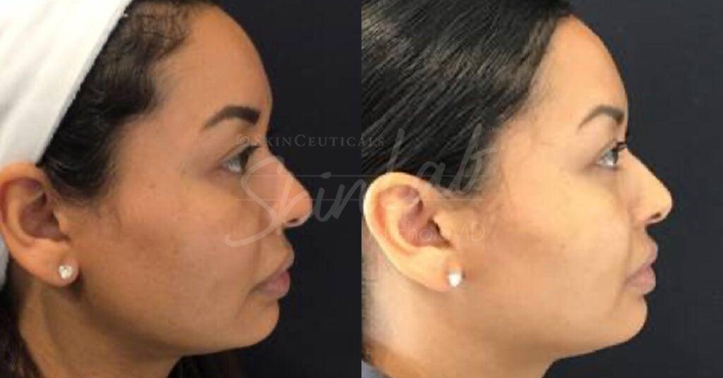 SkinLab Cheek Contour Treatment