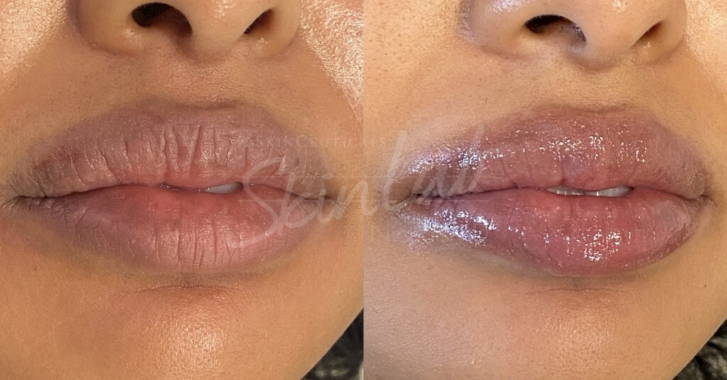 SkinLab Liquid Lift Treatment