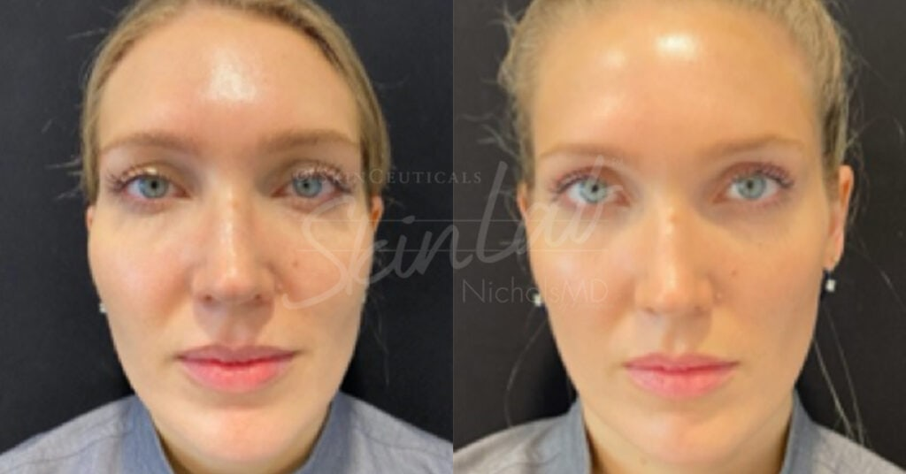 SkinLab Temple Lift Treatment