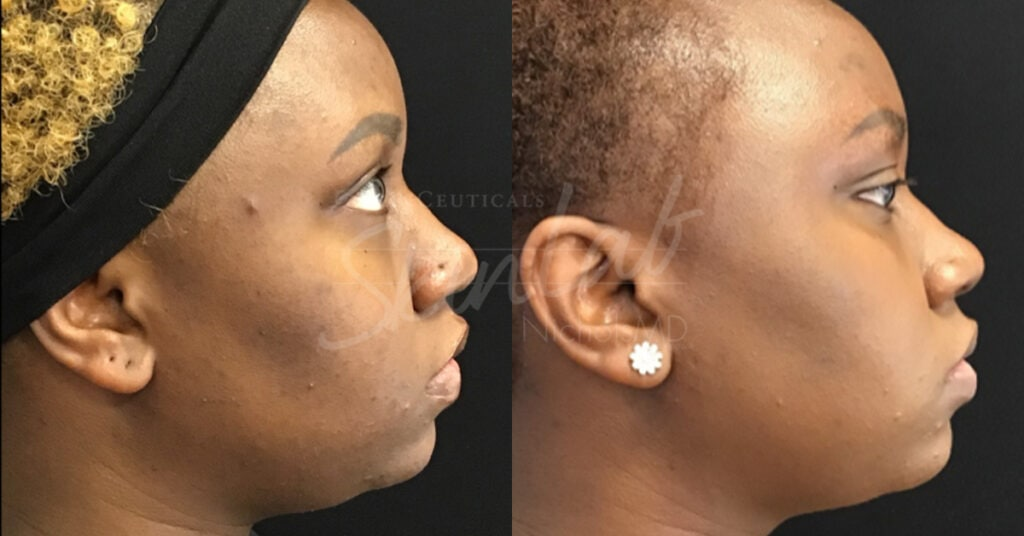 SkinLab TCA Treatment