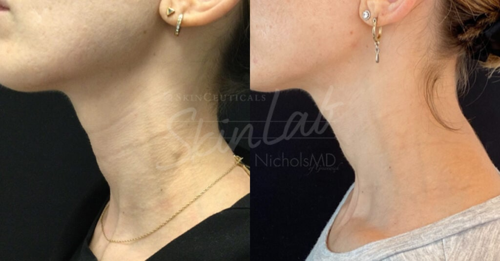 SkinLab Tech Neck Treatment