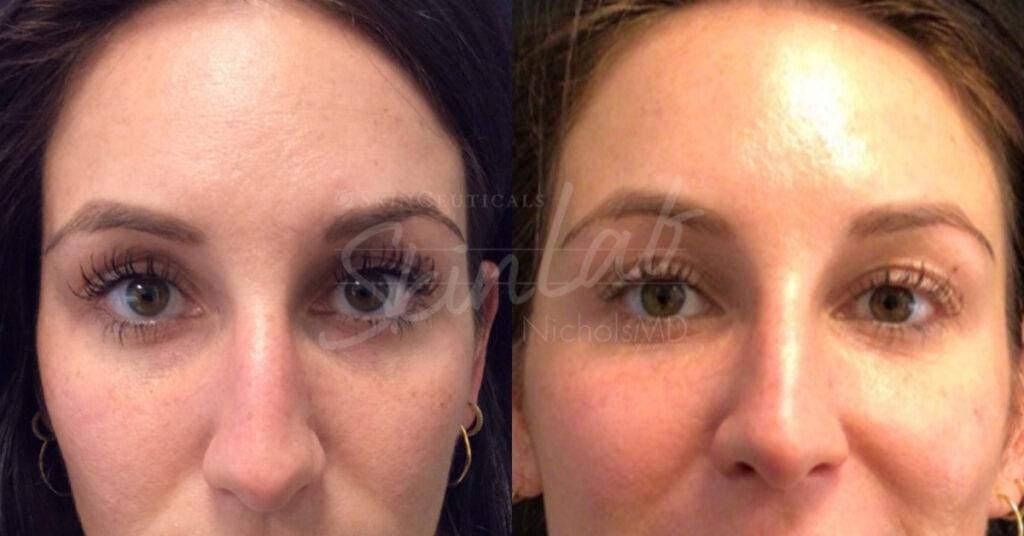 SkinLab Total Eye Rejuvenation Treatment