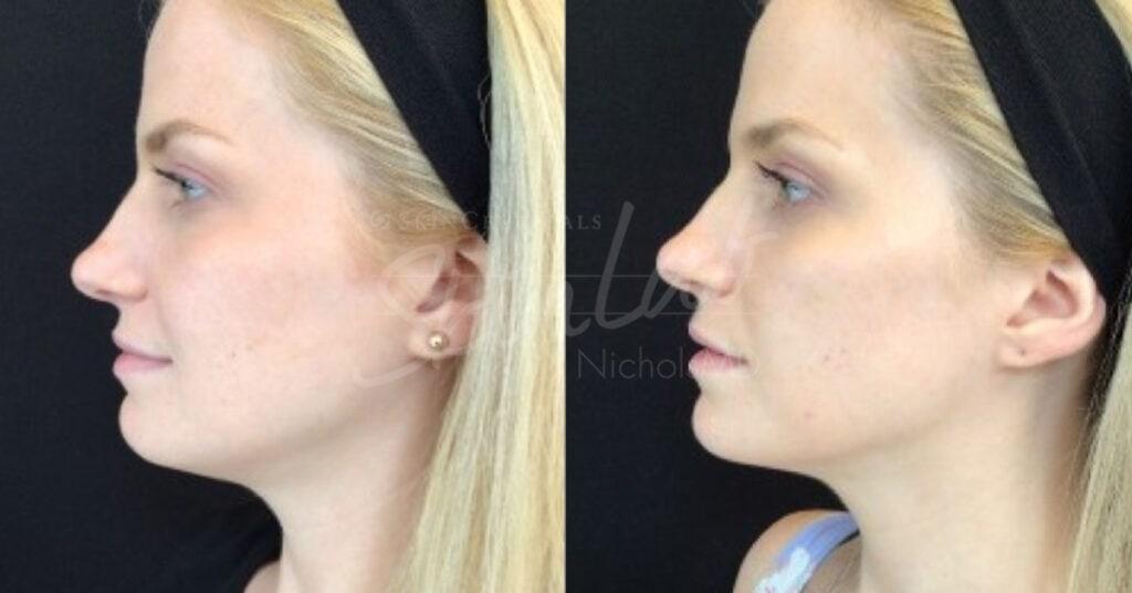 SkinLab Cheek Pop Treatment