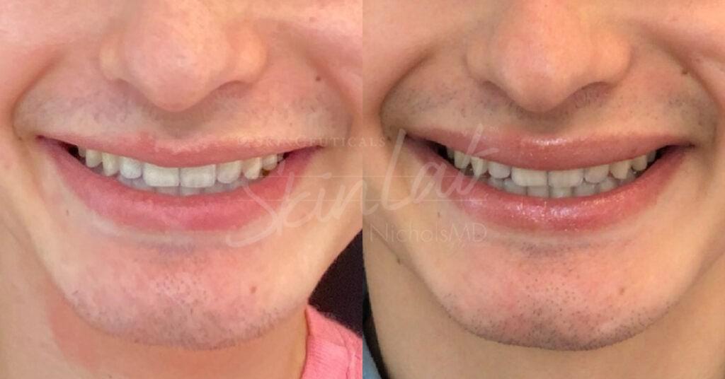 SkinLab LipFlip Treatment