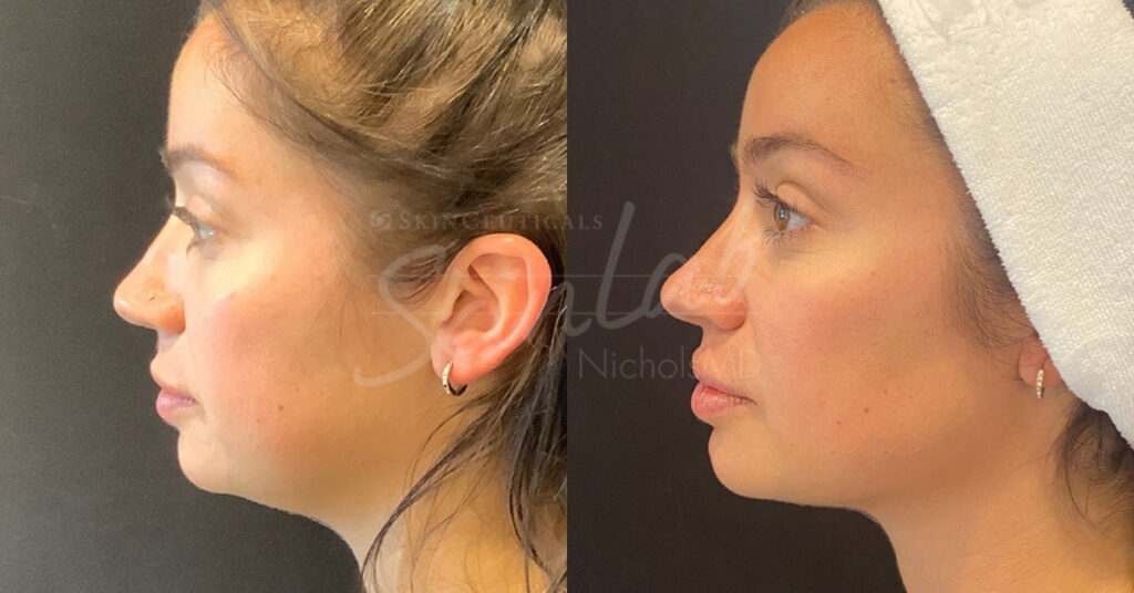SkinLab Jawline Contour Treatment