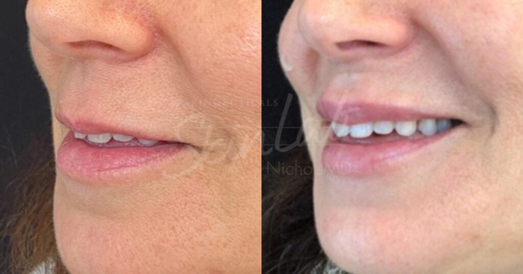 SkinLab Liquid Lip Lift Treatment