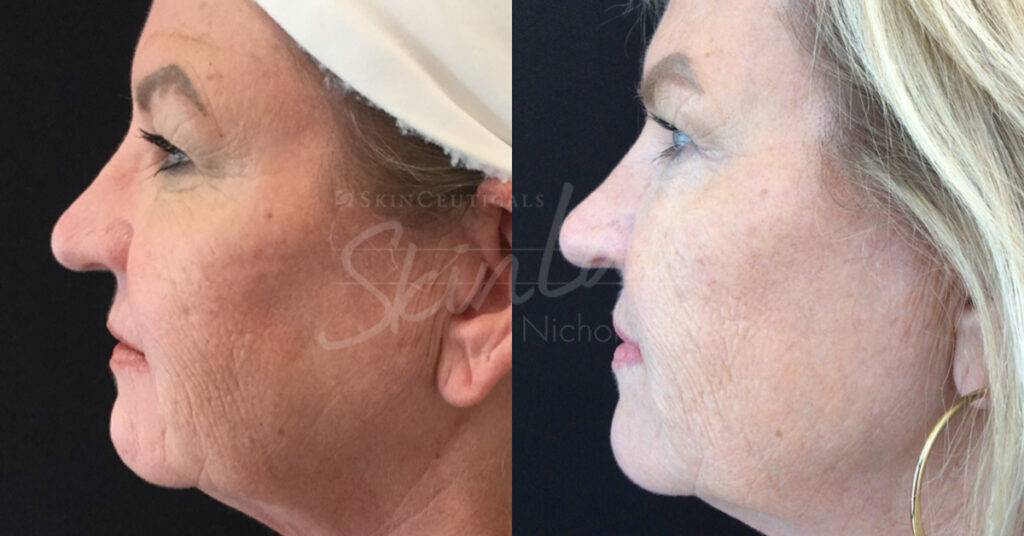 SkinLab Clear and Brilliant Treatment